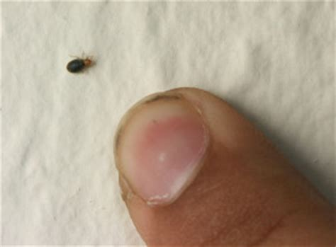 bed bugs   apartment insects   city