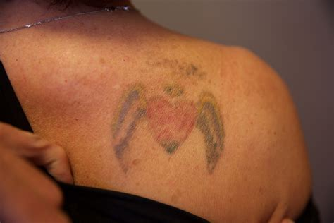 tattoo removal after 1 treatment removal the untattoo