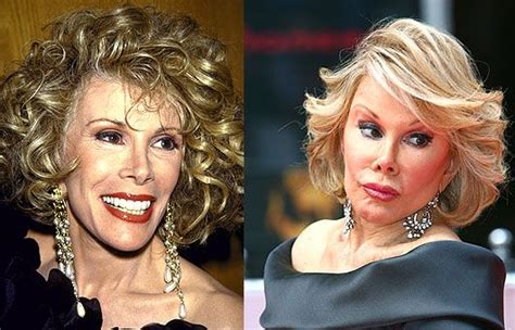 Beware Of Donatella by 1000 Ideas About Plastic Surgery On