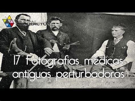 imagenes medicas perturbadoras top 10 fotos antiguas perturbadoras doovi
