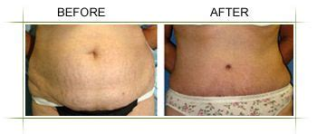 who are the best candidates for panniculectomy a pannus also commonly referred to as a