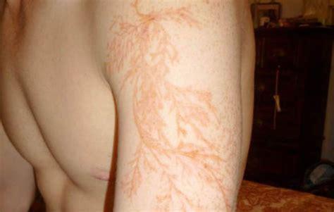 lightning strike scars in the shape of lichtenberg figures