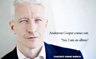 what color do albinos chicago news bench cooper admits he s quot i