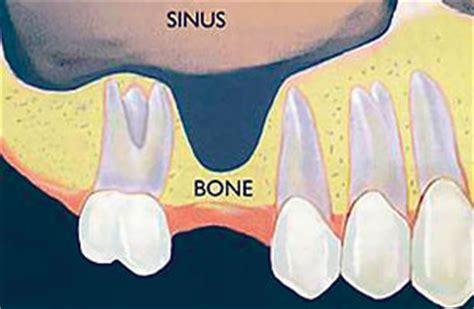 bone grafting sinus lift
