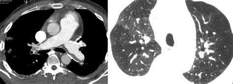 chest hrct image from patient with chronic thromboembolic a systematic approach to interpretation of heterogeneous