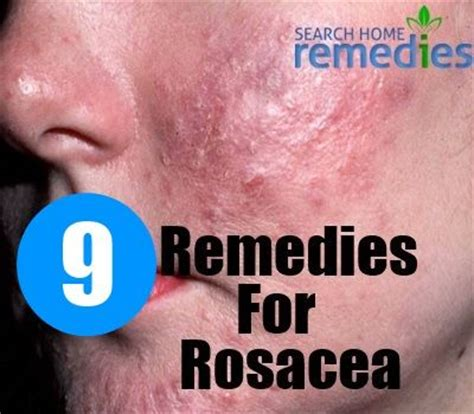 98 best ideas about rosacea on sibu