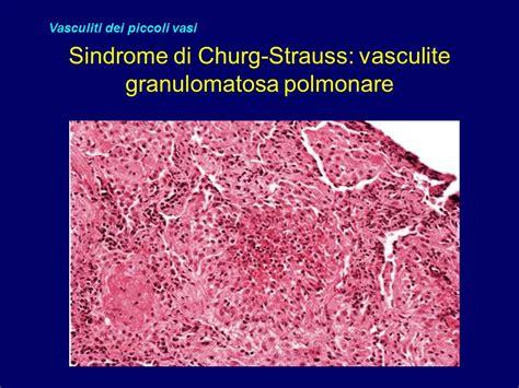 vasculite dei piccoli vasi vasculiti e microangiopatie ppt scaricare