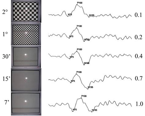 pattern vep clinical ocular electrophysiology intechopen