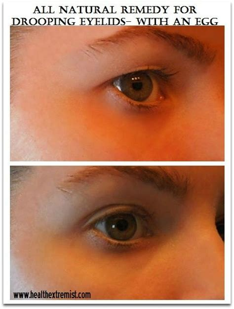 hooded eyes design natural remedy for drooping eyelids sagging eyelids or