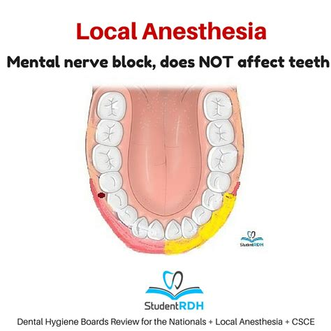 Local Dental Anethesia Detox by Q The Mental Nerve Block Anesthetizes The Studentrdh