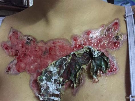 signs of tattoo infection left with horrific scar after falls