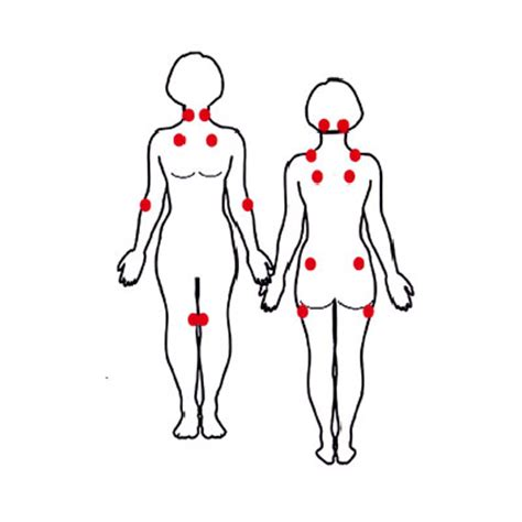fibromyalgia tender points diagram diagnose fibromyalgia health
