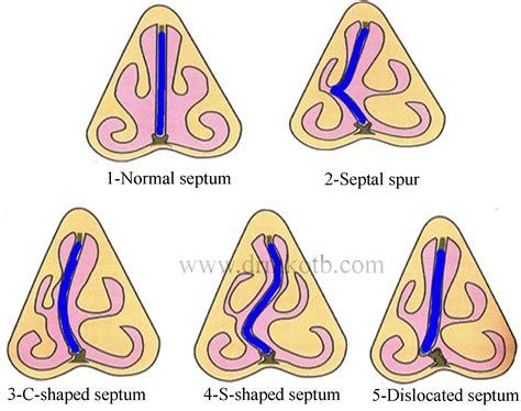 deviated septum diagram home www drmkotb