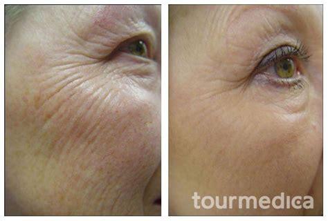 laser wrinkle removal before and after fractional carbon dioxide laser skin lift wrinkle