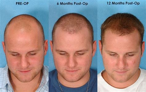 Hair Transplant Types The Best One by All About Hair Transplant Surgery S Answer