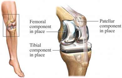relationship between leg extensor muscle strength and knee