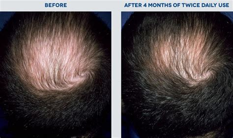Rogaine And Shedding by New Rogaine Hair Regrowth Treatment For 5 Minoxidil 3