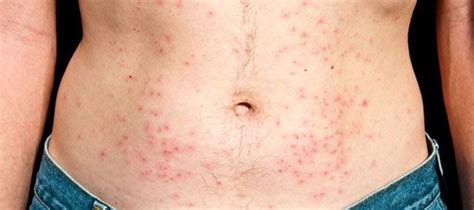 Folliculitis From Tub 17 best images about tub ideas on tub
