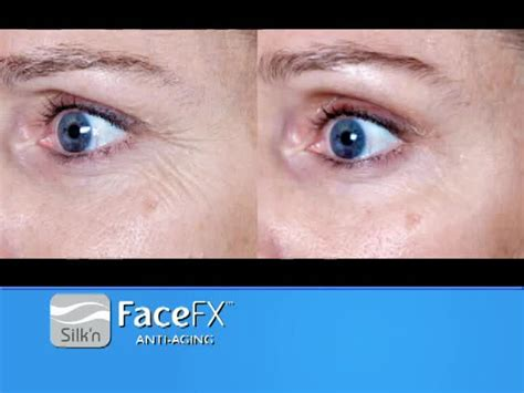 silk n facefx anti aging light based treatment device silk n facefx 174 anti aging device bed bath beyond