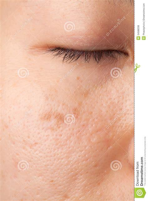 skin problems photos scar skin problem royalty free stock photos image 34588338
