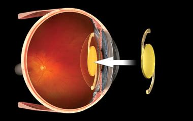 lifestyle lens implants | iol | best | vision | atlanta | ga