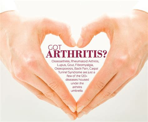 arthritis treatment arthritis treatment 4 step arthritis treatments that work