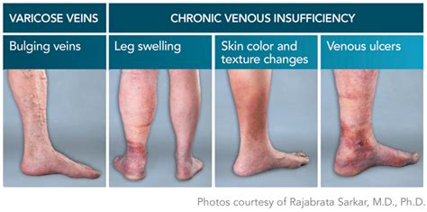 8 Symptoms Of Varicose Veins by About Varicose Veins Riverside Ca