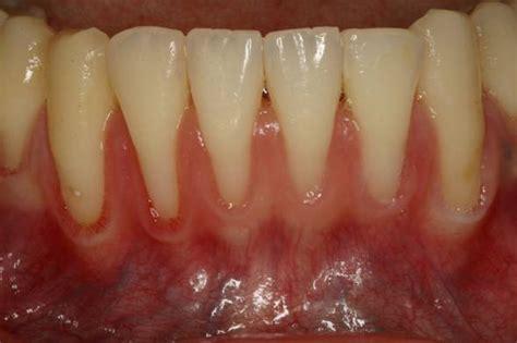 gum recession treatment fix  receding gums dentist