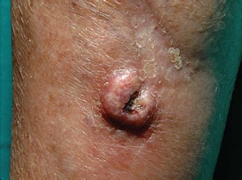 nodule arising in a surgical scar photo quiz american