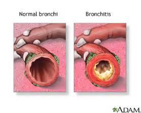 Bronchitis acute medlineplus medical encyclopedia
