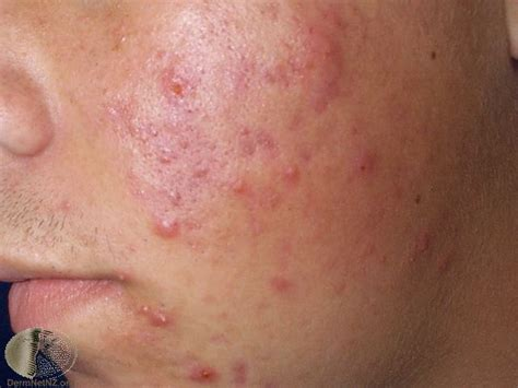 What Is Acne by Acne What Is Acne Causes Diagnosis Treatments Lsah