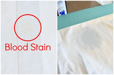 How To Clean Fabric Stain by How To Remove Dried Set In Blood Stains From Clothes