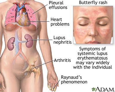 systemic lupus erythematosus medlineplus encyclopedia