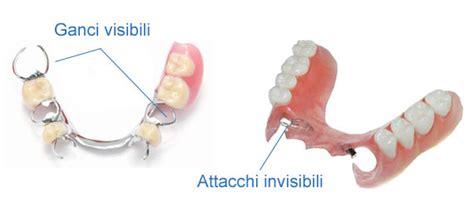 tipi di protesi dentarie mobili protesi scheletrato roma implantologia dentale roma prezzi