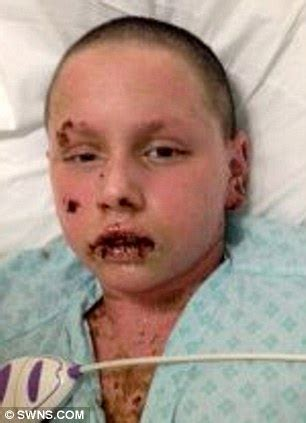 11 year old boy loses 65% of his skin, placed on life