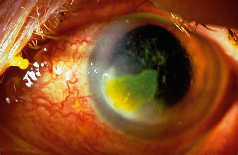 eye ulcer community eye health journal 187 the eye aid at the primary level