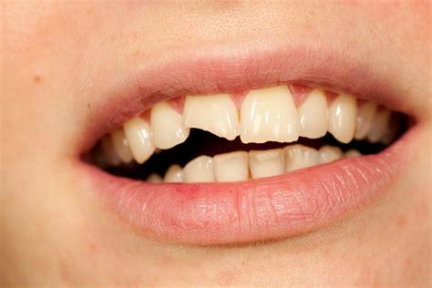 la reconstruccion de una 0764825011 reconstrucci 243 n dental