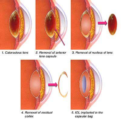 cataract surgery. causes, symptoms, treatment cataract surgery