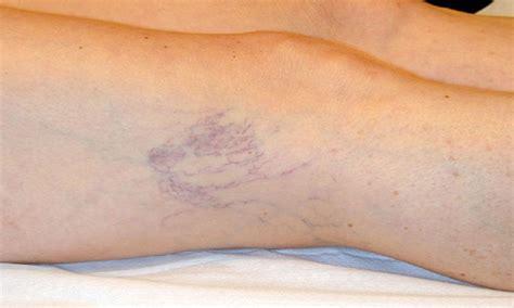 rottura vasi capillari capillari rotti cause e principali rimedi