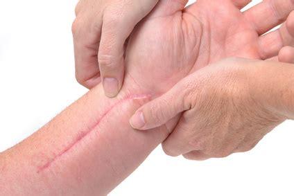 keloid narbe tattoo salud y calidad de vida vivir mejortratamiento de las