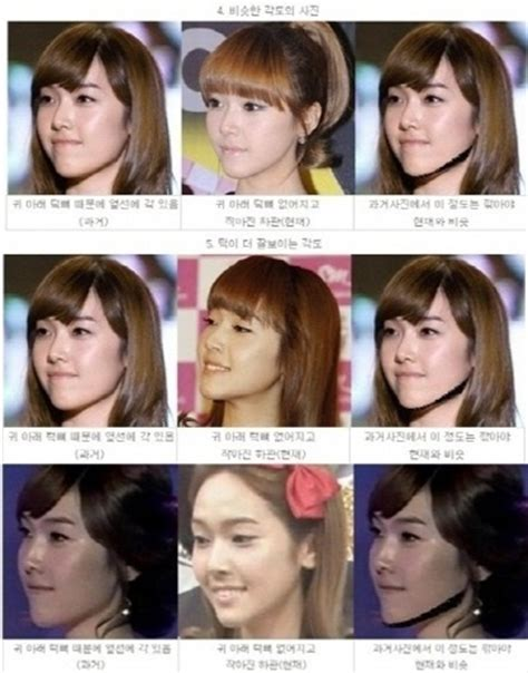 jessica jung before plastic surgery snsd s jessica accused of chin surgery soompi