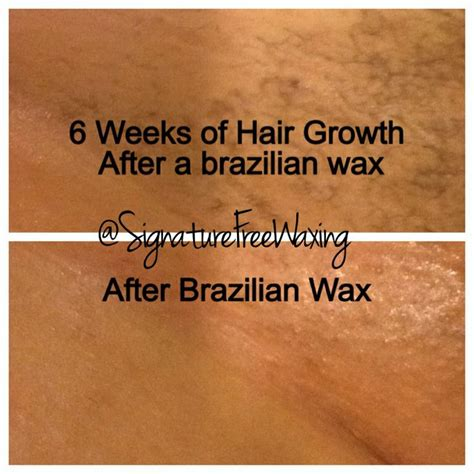 Brazilian Wax Before And After Pictures Women | brazilian wax before and after photos women www pixshark