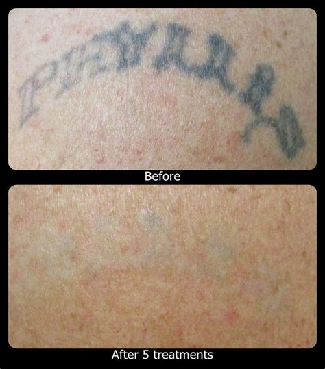 vanish tattoo removal 1000 images about vanish laser removal progression