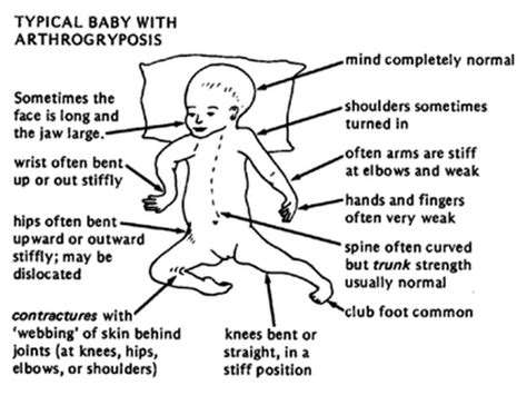 multiplex definition arthrogryposis multiplex congenita amc causes symptoms