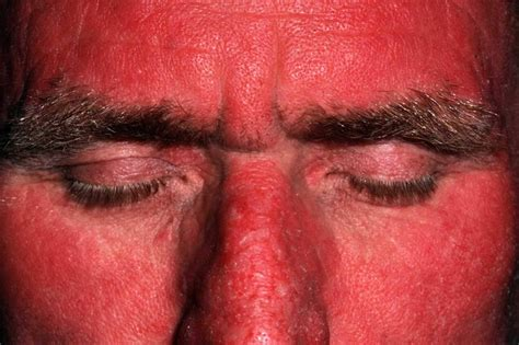 polymorphous light eruption lupus polymorphic light eruption causes rash treatment