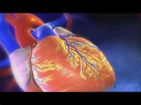 infarto del miocardio as 237 se produce un infarto de miocardio youtube