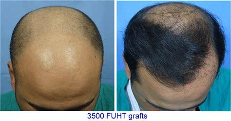 hair transplant problems image