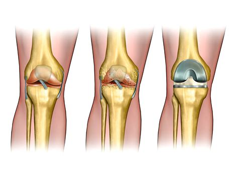 knee surgery total knee replacement surgery