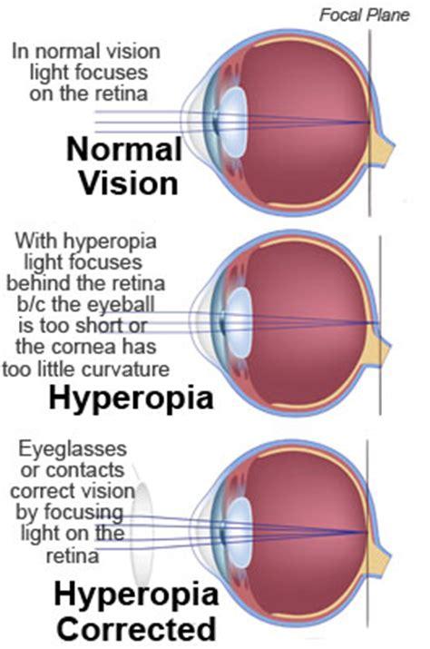 hyperopia; hypermetropia; farsightedness