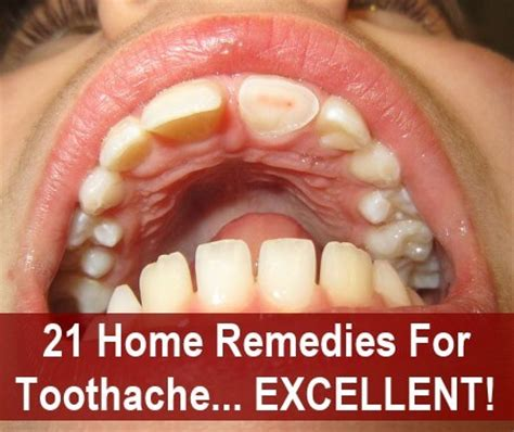 home remedy for a toothache 21 home remedies for a toothache